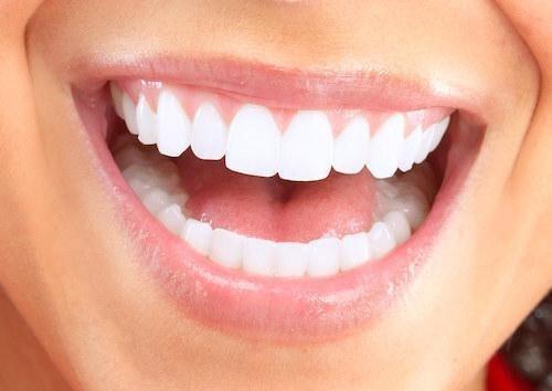 Cleaner Smile