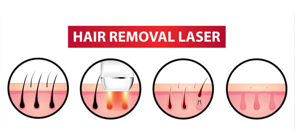 IPL Hair Remover Review